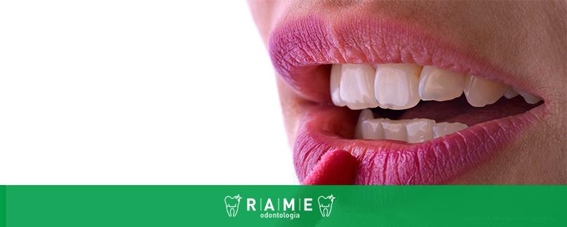 b5150268feb2b Dentista de Taguatinga responde dúvidas sobre lente de contato dental